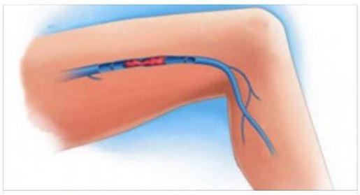 Cibo allatto di una posizione di varicosity