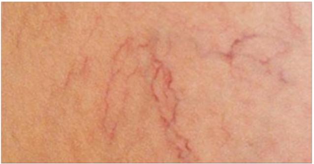 Drenaggio di vene di una gamba